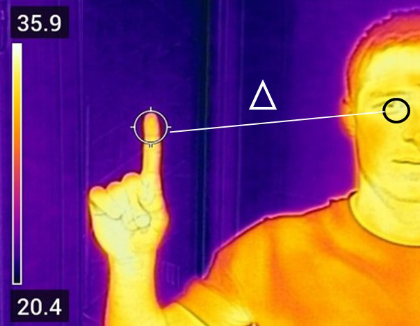 Thermogram of a person